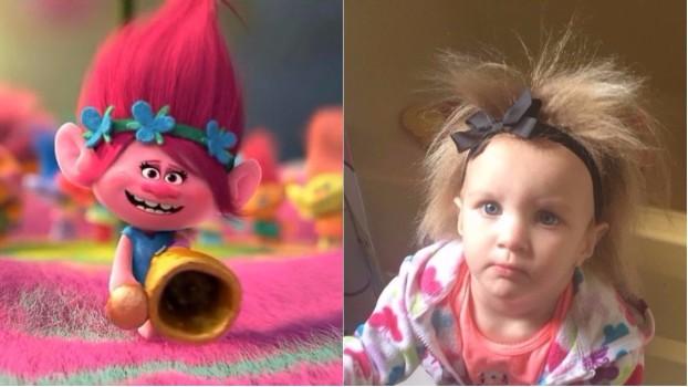 """VIDEO Fetița al cărei păr nu poate fi coafat. Micuța """"Troll"""" suferă de o mutație genetică rară"""
